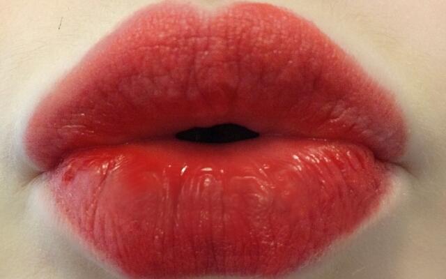 Хиалуронова киселина в устните оферти варна